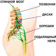 Сильная боль в спине.Седалищный нерв.Боль может ощущаться по всей ноге