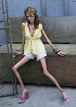 Анорексия и булимия фото порно