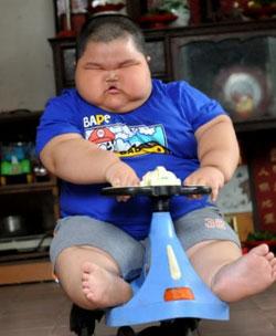 Детское ожирение становится эпидемией